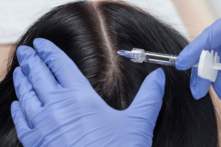 Botox Treatment for Migraine headache