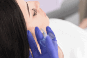 Cheek Enhancement Dermal Fillers