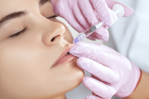 Lip Enhancement Dermal Filler