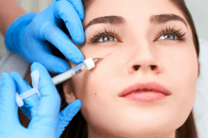 Tear Trough Dermal Fillers